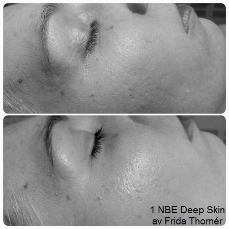 deep skin